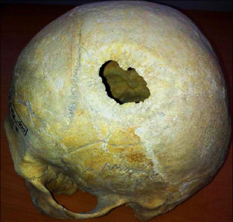 شواهدی از جراحی مغز در شهرسوخته سیستان وجود دارد.